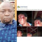 Wife Beater Who Boasted On Facebook Gets N500,000 Bail