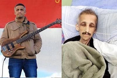 Musician Dies Two Days After 1-Year Hunger Strike