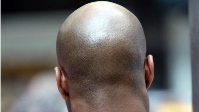 Bald Men At Higher Risk Of Severe Case Of COVID-19, Study Reveals