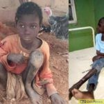 #JusticeForJibril: Police Arrest Stepmother, Father Who Chained 11-Year Old Boy For Two Years